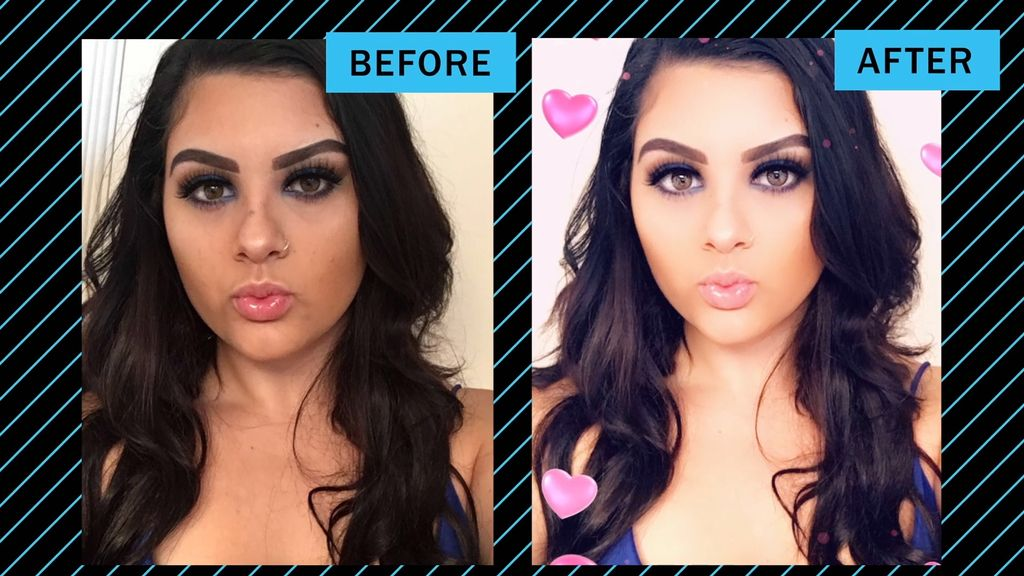MTV Show Profiles Women Getting Plastic Surgery to Look Like